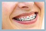 InfoBox3 – Ortodoncia